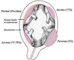 300px-Placenta_accreta